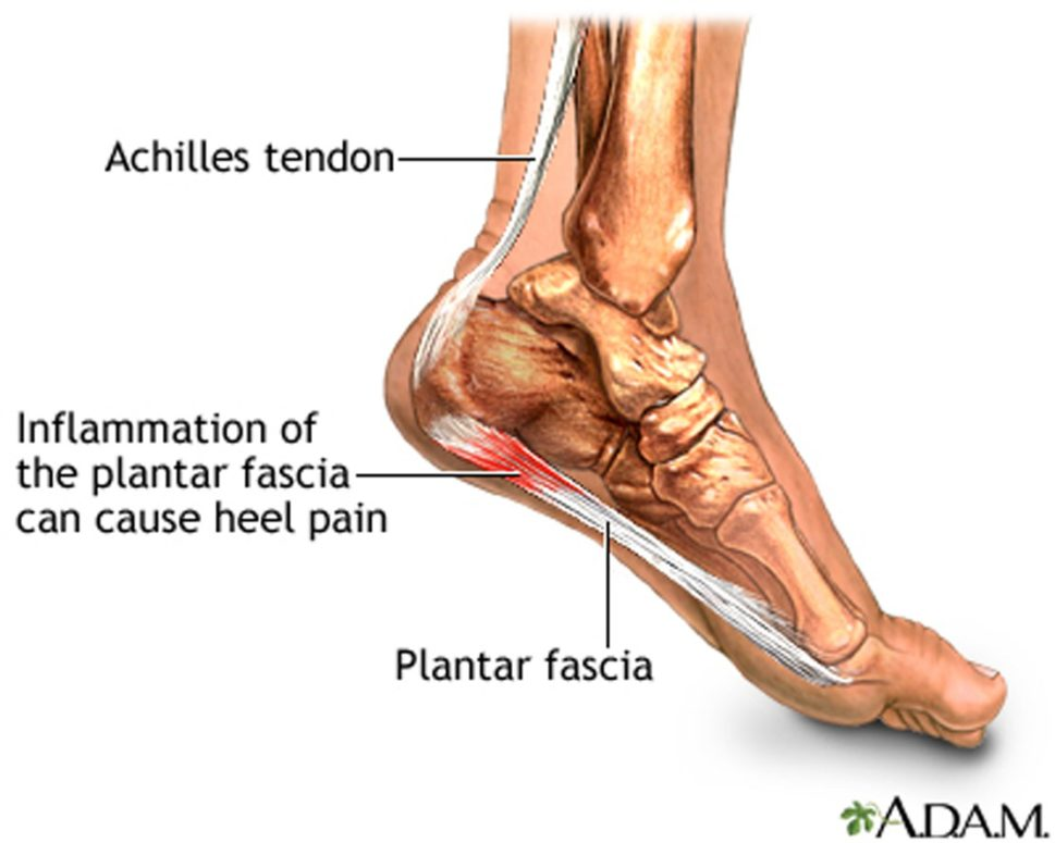 Plantar Fasciitis: Quick Tips For Effective Conservative Management ...